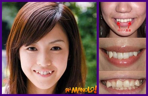 nova-tendencia-japao-dentes-4