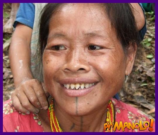 dentes-indonesia-2