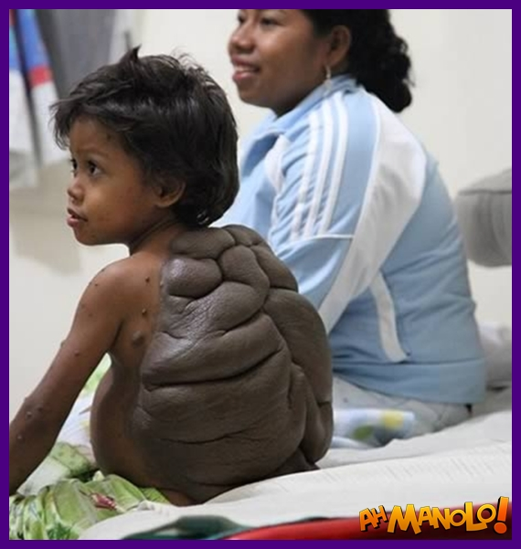garoto-tartaruga-