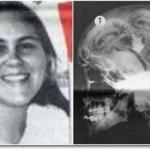 garota com três cérebros